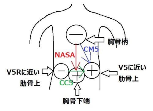 Holter心電図誘導