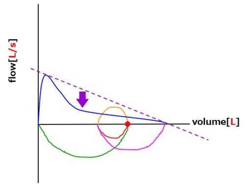 フローボリューム曲線閉塞性換気障害