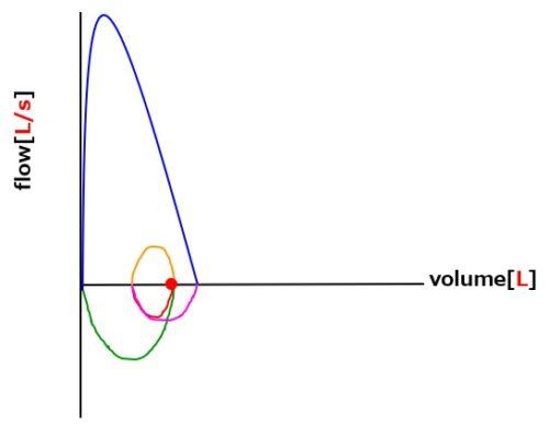 フローボリューム曲線拘束性換気障害