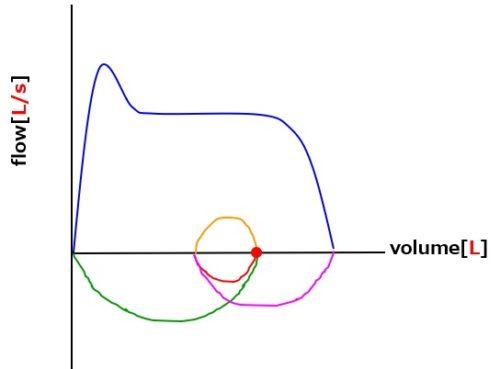 フローボリューム曲線上気道閉塞